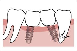 天然歯への傷害