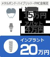 インプラント20万円